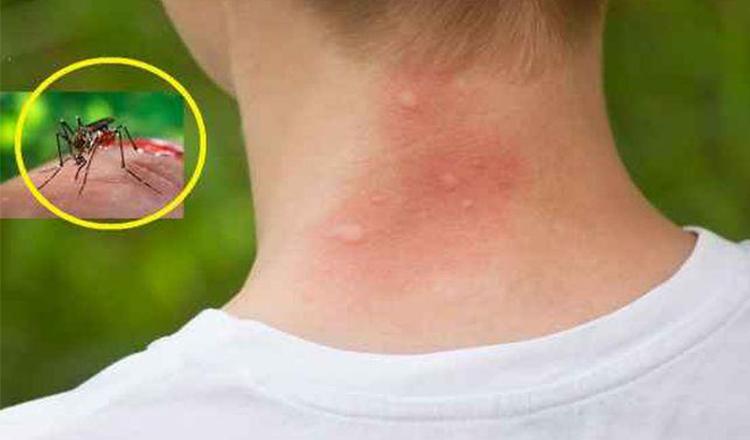 Cum să scapi de țânțari cu busuioc sau bicarbonat. 5 remedii casnice